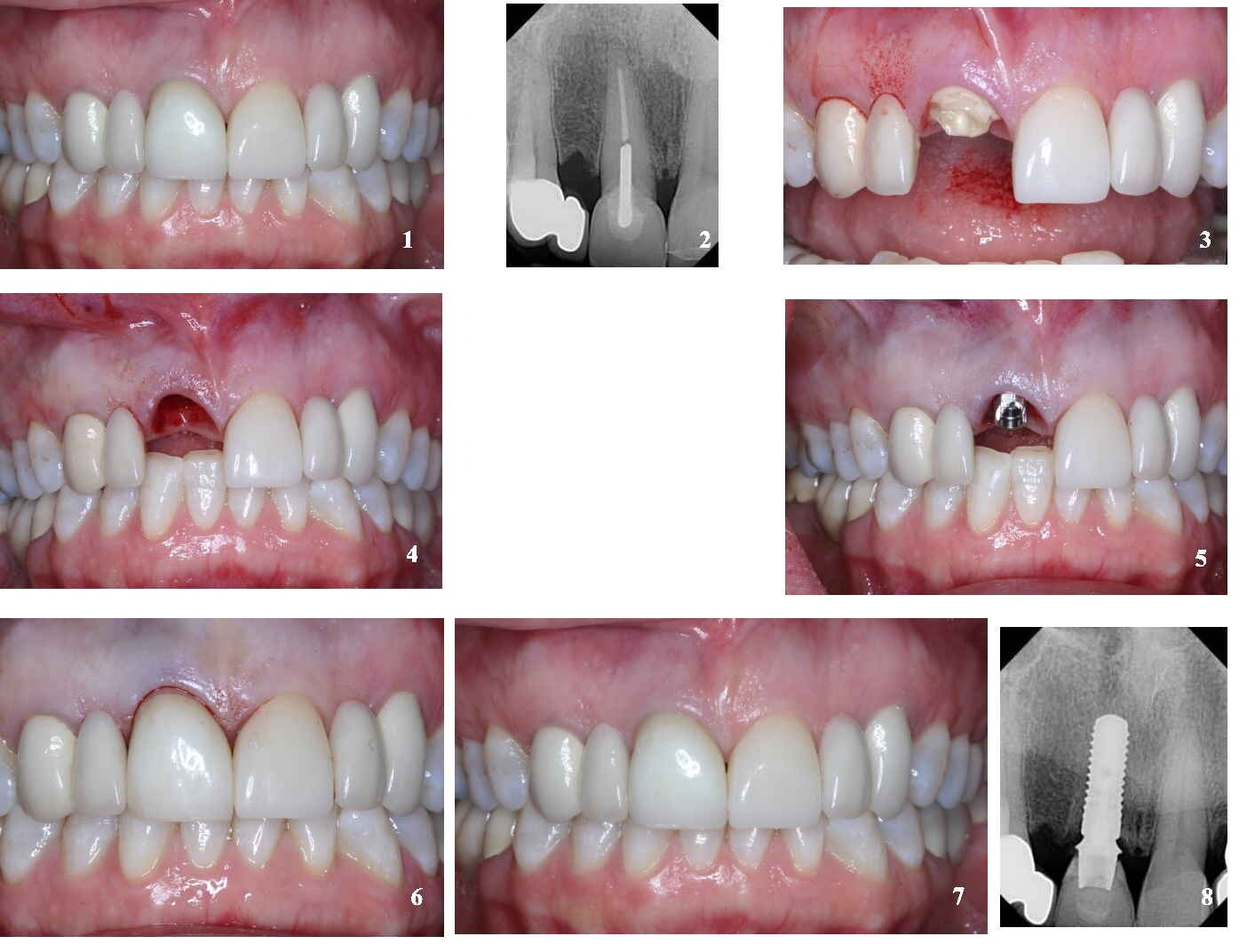Implant - optimal solutions to replace missing teeth