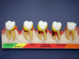 Sealant to prevent tooth decay