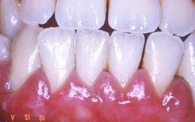 Dark teeth Treatment