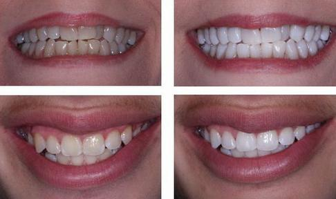 whitening and dental plaque taking service