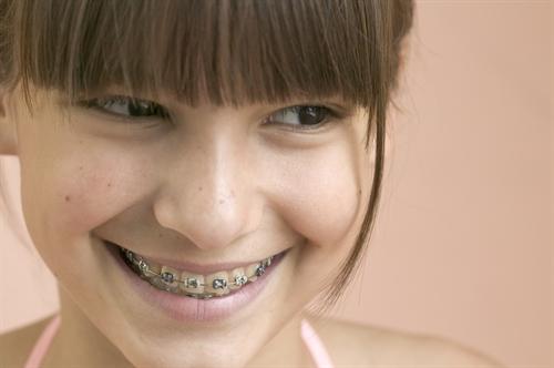 Thắc mắc của bệnh nhân: Niềng răng có đau không?