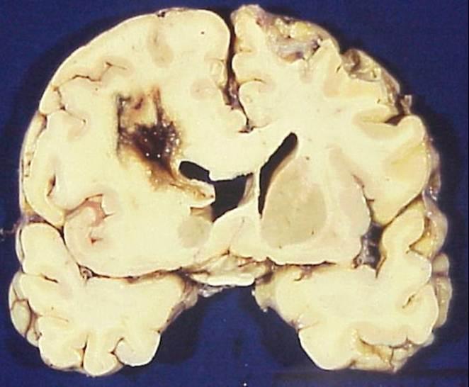Các biến chứng thường gặp trên bệnh nhân Chấn thương sọ não