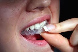 Implant - giải pháp trồng răng tối ưu thay thế răng bị mất
