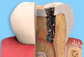 Ðánh răng rất kĩ nhưng vẫn bị sâu