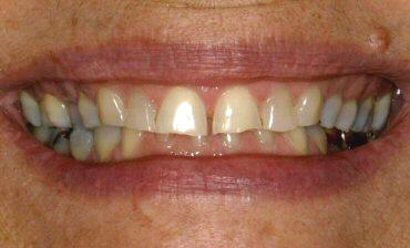 Phục hình sứ cho răng nhiễm Tetra
