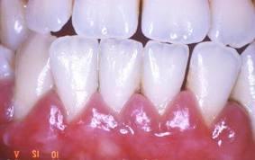 Viêm nướu răng - nguyên nhân và cách điều trị
