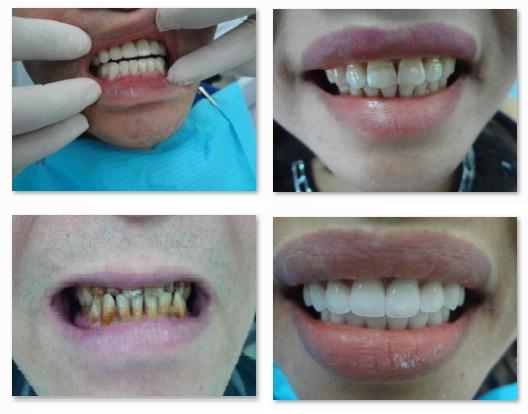 Hình ảnh bệnh nhân trước và sau khi phục hình bằng răng sứ Cerconht